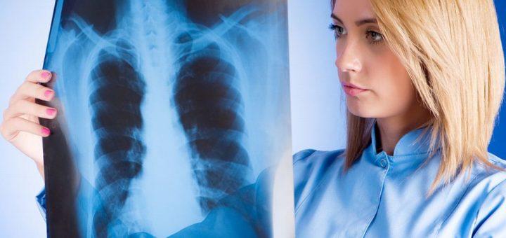 kak-raspoznat-predraspolozhennost-k-tuberkulezu-lyogkix